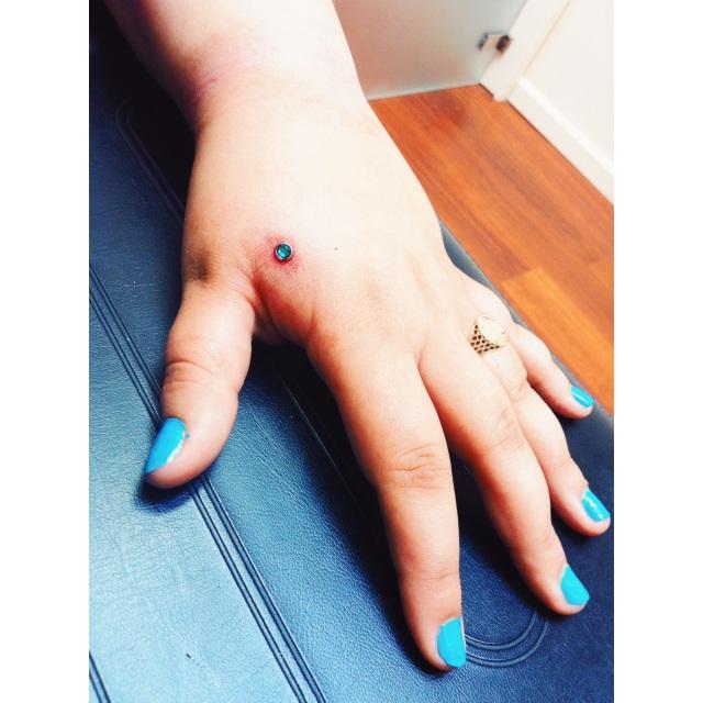 Dion's Hand Dermal I
