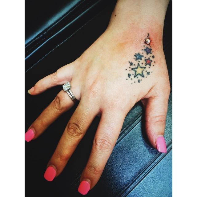 Rebecca's Hand Dermal III