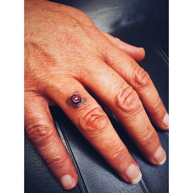 Donna's Finger Dermal