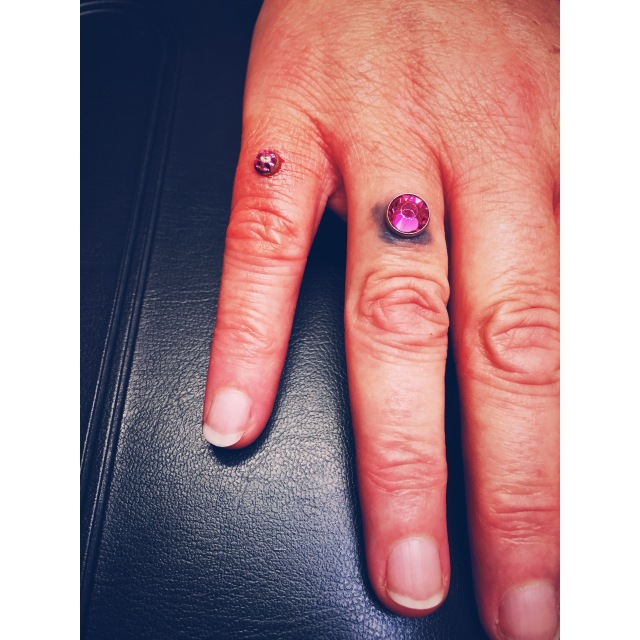 Donna's additional pinky dermal piercing